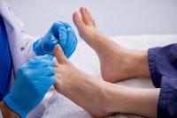Nagelpilz an den Füßen wird mit Loceryl oder Ciclopoli behandelt.