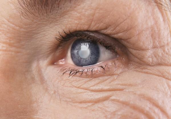 Auge einer Frau weist Symptome für grauen Star auf
