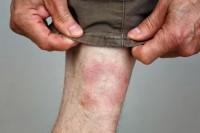 Mann mit Borreliose von einem Zeckenbiss am Bein