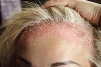 Frau mit Neurodermitis auf der Kopfhaut hält das Haar zurück.