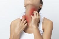 Erwachsene mit Neurodermitis kratzt sich wunde Stellen am Hals.