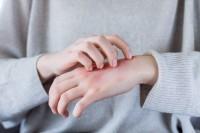 Frau mit Neurodermitis an der Hand kratzt sich.