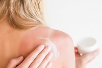 Frau verteilt After Sun auf Schultern mit Sonnenbrand