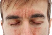 Mann mit Neurodermitis im Gesicht