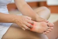 Frau mit Neurodermitis am Fuß kratzt ihre Fußsohle.