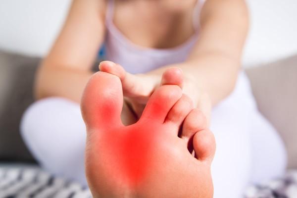 Frau hält sich den Fuß wegen Schmerzen durch Gicht