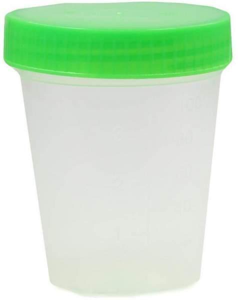 Urinbecher Mit Schraubdeckel Einzelverpackt